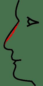 remboursement de la rhinoplstie