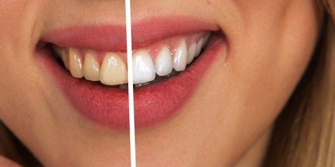 Blanchiment des dents : astuces de grand mère pour avoir les dents blanches